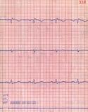 Herz Diagramm der Nahaufnahme, pacient Innerprüfung, stockfotos