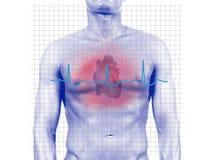 Herzinfarkt stockbild