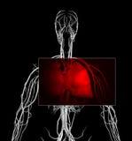 Herzinfarkt stock abbildung