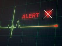 Herzschlagkardiogramm auf dem Monitor Lizenzfreie Stockfotos