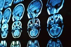 Het aftasten van het magnetische resonantiebeeld van de hersenen MRI-film van een menselijke schedel en hersenen Neurologieachter royalty-vrije stock afbeeldingen