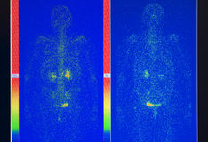 Het beeld van de röntgenstraal Stock Afbeelding