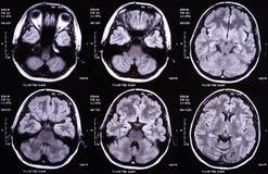 Het beeld van de röntgenstraal van de hersenen Stock Afbeelding
