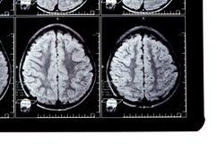 Het beeld van de röntgenstraal van de hersenen Stock Foto's