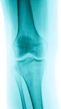 Het beeld van de röntgenstraal van een knie stock foto's