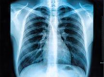 Het beeld van de Röntgenstraal van de borst In B/W Stock Foto's