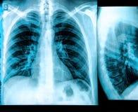 Het beeld van de Röntgenstraal van de borst In B/W Royalty-vrije Stock Foto