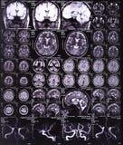 Het beeld van de röntgenstraal van de hersenen Stock Afbeeldingen