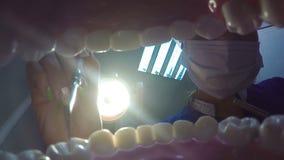 Het behandelen van tanden bij de tandarts stock video