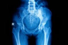 Het bekken en de heup van het röntgenstraalbeeld stock foto's