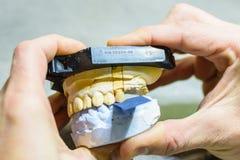 Het bijten test met prothesevormen Stock Afbeelding