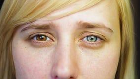Het blonde met verschillende ogen bekijkt de camera en verwijdert haar hand, heterochromia, in langzame motie stock footage