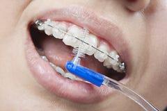 Het borstelen van uw tanden met steunen Royalty-vrije Stock Afbeeldingen