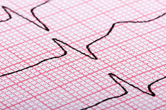 Het cardiogram van hart sloeg Stock Foto