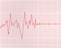 Het cardiogram van het hart Royalty-vrije Stock Foto