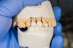 Het ceramische close-up van de tandkroon op een pleistermodel Tand prothese stock afbeelding
