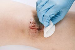 Het close-up van bloedig kerft op knie Gekronkelde behandeling met ontsmettingsmiddel stock fotografie