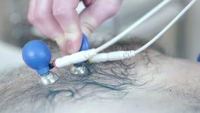 Het close-up van de arts plaatst de uitloper in het hart om een elektrocardiogram te ontvangen stock video