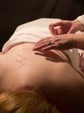 Het Concept van de acupunctuur Stock Afbeeldingen