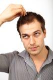Het concept van het haarverlies - jonge die mens over kaalheid ongerust wordt gemaakt royalty-vrije stock foto's
