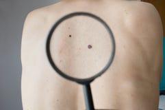 Het controleren van melanoma op de rug van een mens Royalty-vrije Stock Foto's