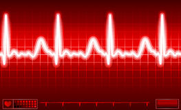 Het de monitorscherm van het hart Stock Foto's