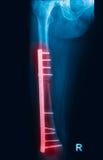 Het dijbeen van de breuk, het beeld van dijbeenröntgenstralen Stock Foto's