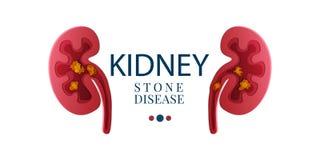 Het document van de niersteenziekte sneed 3D affiche stock illustratie
