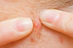 Het drukken van de acne stock afbeeldingen