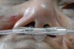 Het effect van de medicijnfout op bejaarde patiënt royalty-vrije stock foto