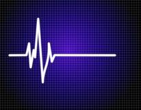 Het electrocardiogram van de impuls (ECG) Royalty-vrije Illustratie