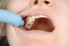 Het gat in de tand en de behandeling van tandkanalen Behandeling van periodontitis in de tandkliniek stock afbeeldingen