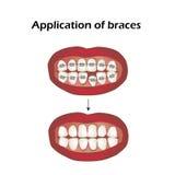 Het gebruik van steunen Bochtige tanden orthodontie Infographics Vectorillustratie op geïsoleerde achtergrond Royalty-vrije Stock Afbeelding