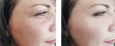 Het gezicht van vrouwenrimpels before and after de kosmetiekbehandelingen van de regeneratie rijpe behandeling royalty-vrije stock fotografie