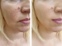 Het gezicht van vrouwenrimpels before and after geduldige regeneratie vloeit schoonheidsspecialistcorrectie voort royalty-vrije stock afbeelding
