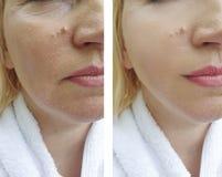 Het gezicht van vrouwenrimpels before and after het opheffen van regeneratie vloeit de behandeling van de schoonheidsspecialistco stock fotografie