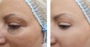 Het gezicht van vrouwenrimpels before and after het opheffen van regeneratie vloeit schoonheidsspecialistcorrectie voort royalty-vrije stock foto's
