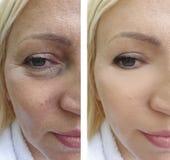 Het het gezichtseffect van vrouwenrimpels before and after geduldige regeneratie vloeit schoonheidsspecialistcorrectie voort royalty-vrije stock foto's