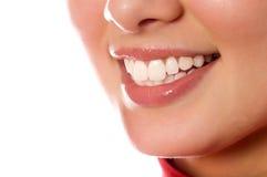 Het glimlachen van jonge meisjesmond met grote tanden Stock Afbeeldingen