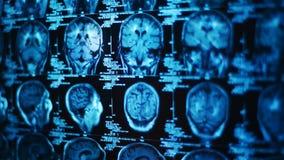 Het gloeien en stralend MRI-aftasten Stock Afbeelding