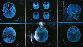 Het gloeien en stralend MRI-aftasten stock footage