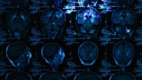 Het gloeien en stralend MRI-aftasten stock video