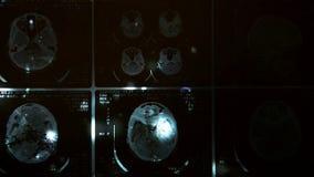 Het gloeien en stralend MRI-aftasten stock videobeelden