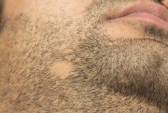 Het haarverlies van alopeciaareata op wangbaard in een flard stock fotografie