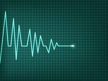 Het hart slaat cardiogram Stock Afbeelding