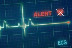 Het hart slaat cardiogram op de monitor Stock Foto