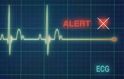 Het hart slaat cardiogram op de monitor royalty-vrije stock foto's