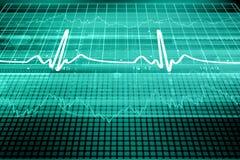 Het hart sloeg Monitor Stock Foto