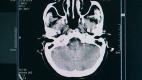 Het hersenenaftasten, sluit omhoog Een aftastenbeeld van geduldige hersenen van ` s stock videobeelden