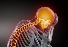 Het hoofd concept van de Pijn Stock Afbeeldingen
